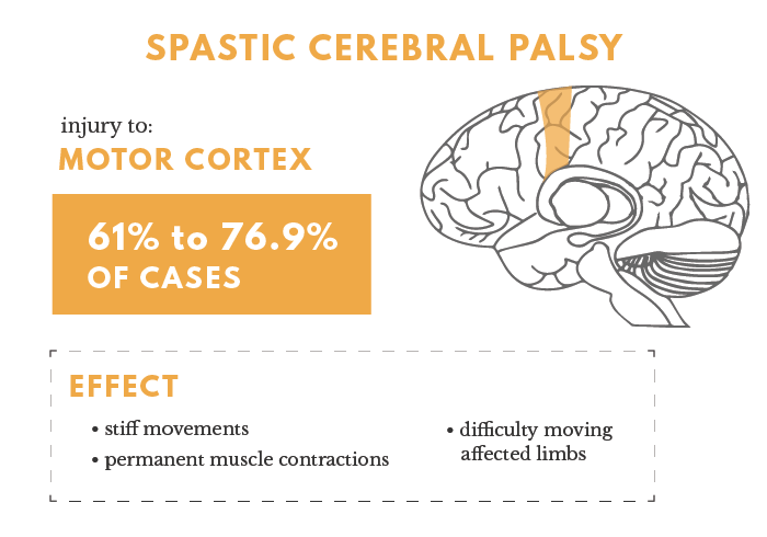Spastic Cerebral Palsy Infographic