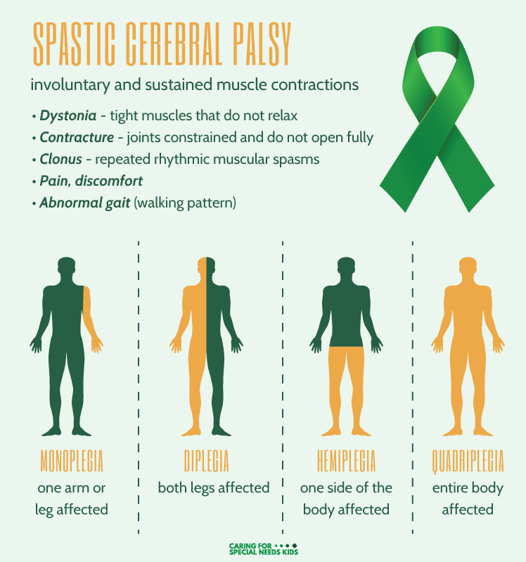 Spastic Cerebral Palsy Symptoms Infographic