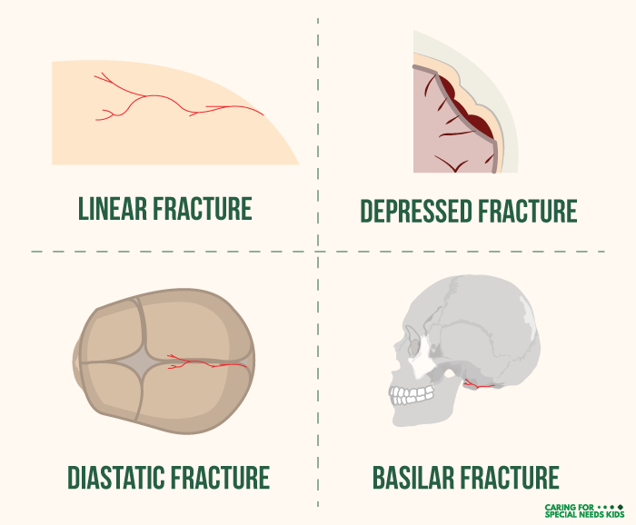Types Of Skull Fracture Infographic